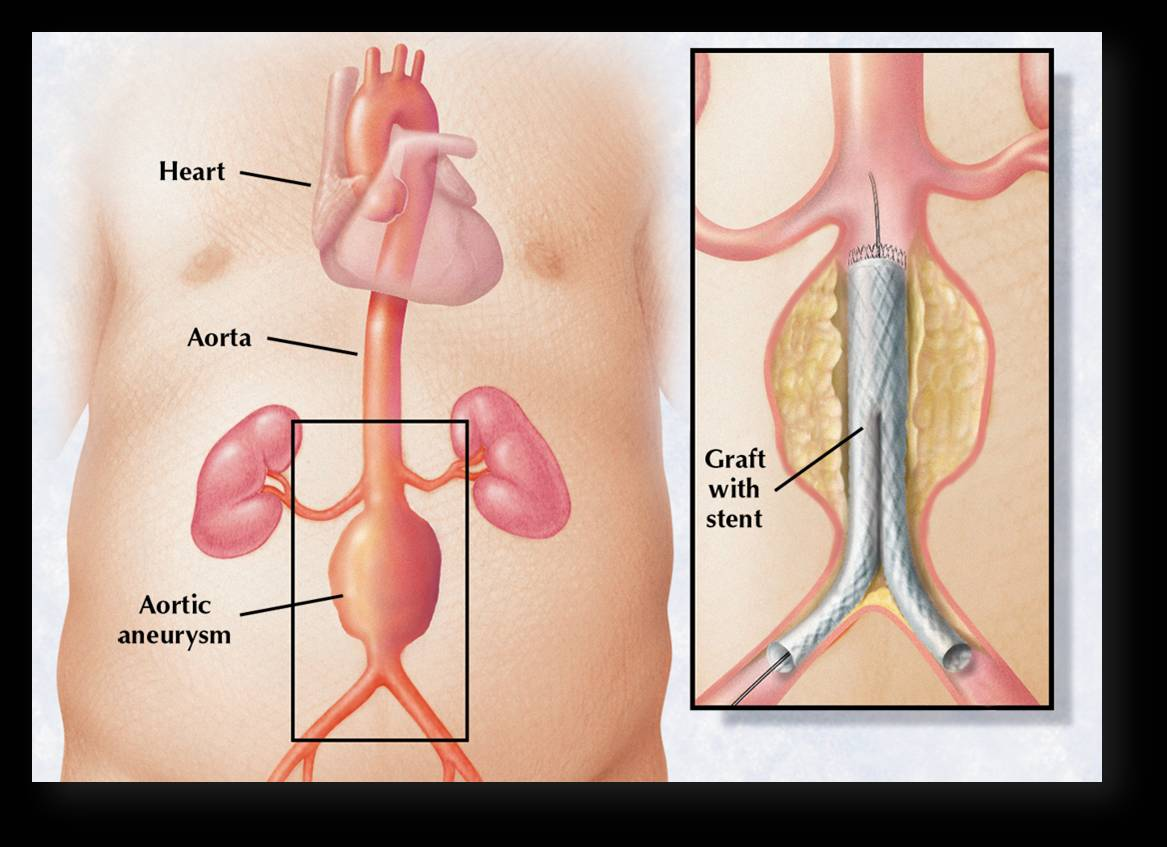 Aneurysm Repair Mayo Clinic Health System