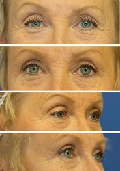 Eyelid lift before and after 1