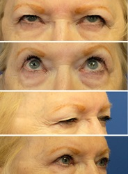 Eyelid lift before and after 2