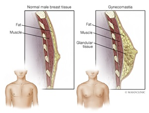 male breast reduction or gynecomastia