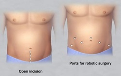 roboticprostatectomyincisions2col