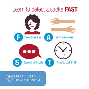 Learn to Detect Stroke Fast