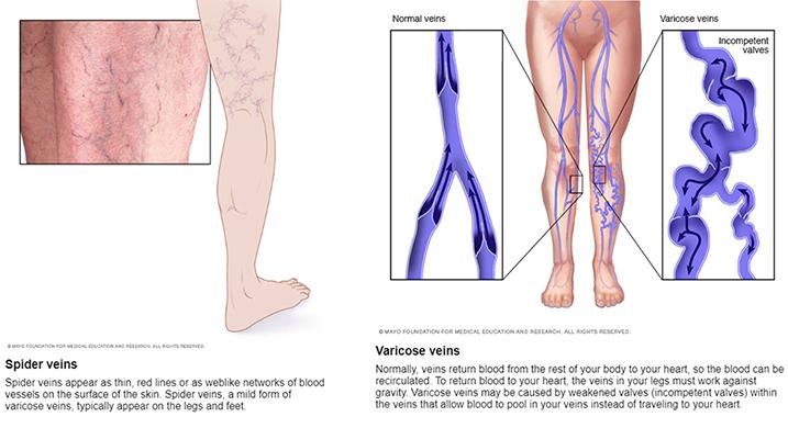 Varile varice ale bazinului: simptome, cauze și metode de tratament
