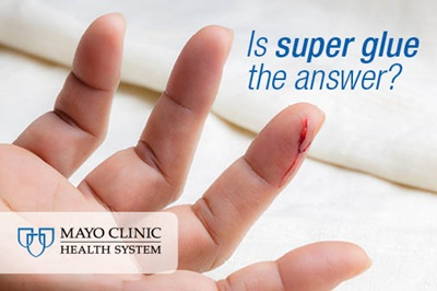 Should super glue be in your first aid kit? - Mayo Clinic