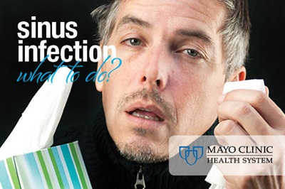 Will my sinus infection clear up on its own? - Mayo Clinic