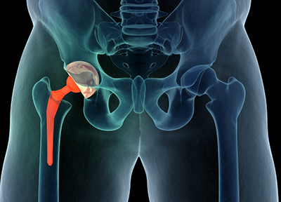 hip-replacement-medical-illustration
