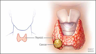 a-medical-illustration-of-thyroid-cancer