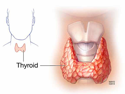 thyroidmedicalillustration