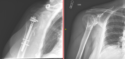 Anterior proximal humerus fracture X-ray