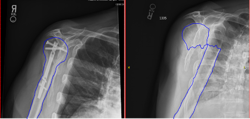Lateral humerus fracture Xray