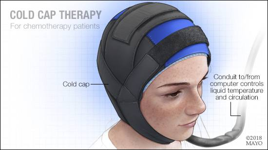 Cold cap therapy illustration