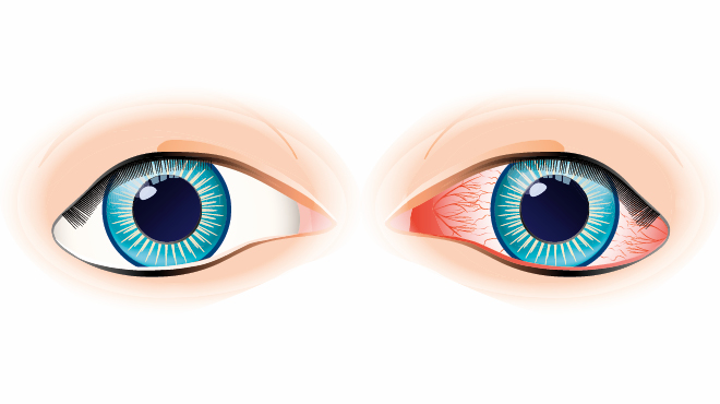Pink eye/conjunctivitis illustration
