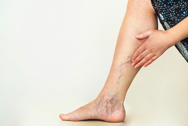 woman-touching-varicose-veins-on-leg