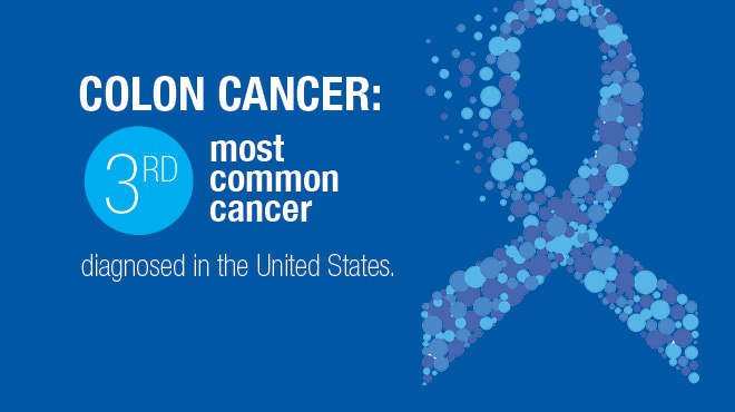 Colon cancer is the third most common cancer in the U.S.