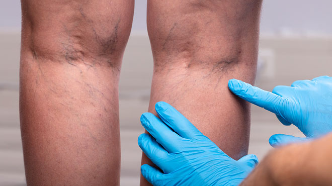 Varicose veins on back of legs