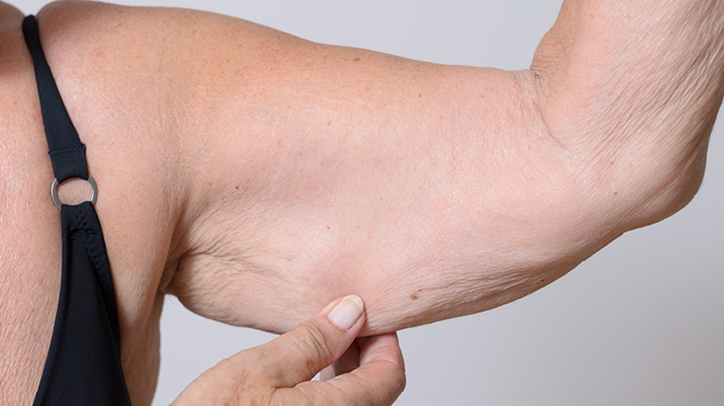 Arm with loose skin from aging