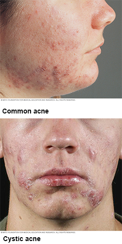 Common Acne and Cystic Acne