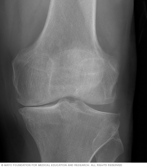 X-ray of knee arthritis
