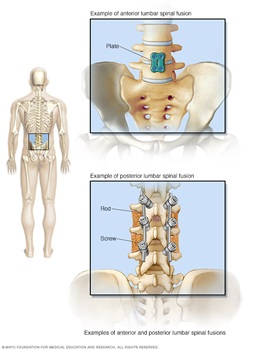 Spinal Fusion, Lower Back