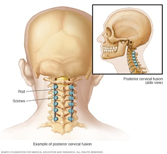 Spinal Fusion Neck